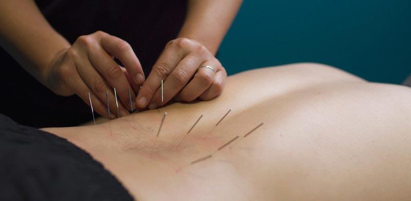 Stoddard Road Physio: Acupuncture & Herbal Medicine
